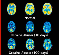 cocaine-brain
