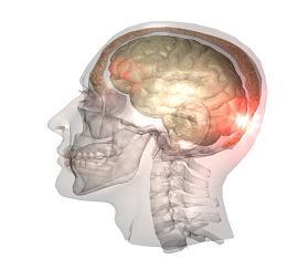 traumatic-brain1